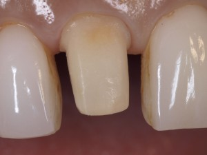 ノナカデンタルクリニック/右上の前歯の治療